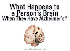 The most common form of dementia, Alzheimer's disease affects specific parts of the brain that control thought, memory and language.