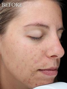 VI Peel (chemical peel) Before and After Transformations.