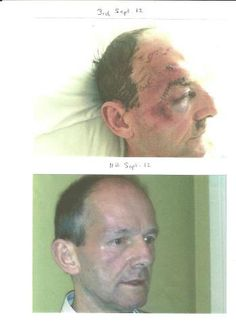 After a bad cycling accident, the photo was taken 9 days apart whilst taking ASEA