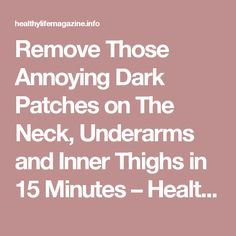 Remove Those Annoying Dark Patches on The Neck, Underarms and Inner Thighs in 15 Minutes – Healthy Life Magazine