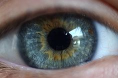 Heterochromia, central....or this one is very similar to my eyes as well