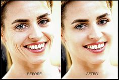 how to get rid of wrinkles on face | health first
