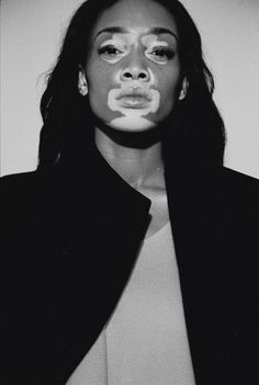 Winnie Harlow - i-D Winter 2014 - the Fashion Spot: