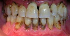 Lack of proper oral hygiene is the main contributing factor to periodontal disease. With proper oral care daily, and professional cleanings from your local Bridgeview dentist can Gingivitis be reversed Home Remedies, Natural Remedies, Oven Baked Chicken Parmesan, Health And Wellness, Health Fitness, Aloe Vera For Face, Coffee And Cigarettes, Oral Hygiene, Dental Care