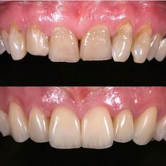 @drbrendel #restorativedentistry#veneers#dentist#dentistry#estheticdentistry#composites#3M#ivoclair#tokuyama#shofo#clinic#invasiline#surgery#dentalsurgery#dentalcollege#sirona#periodontics#prosthodontics#endodontics#pedodontist#odontologia#odonto#dentalsurgery#gingivectomy#dentalphotography#clinics#doctors#medicine#biology#art#medical