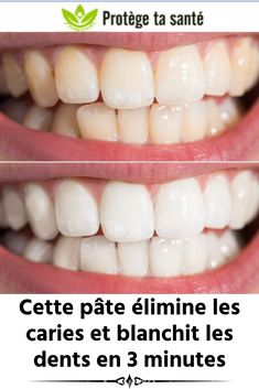 This paste eliminates cavities and whitens teeth in 3 minutes Beauty Photography, Beauty Games, Natural Beauty Tips, Atkins Diet, Celebrity Makeup, Natural Cleaning Products, Cavities, Teeth Whitening, Coco