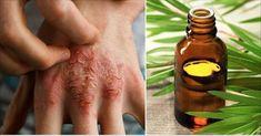 Melaleuca Treats Eczema, Psoriasis, and Acne - Sunday Storyes