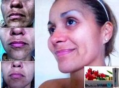 NeriumAD not improves a host of skin issues, but it's meant for all skin types and all ages. Here, this client is seeing a dramatic change in skin discoloration. NO other product can come close to these kind of results. Contact me for more info. Mrsschraut@gmail.com Www.youngnskin.nerium.com