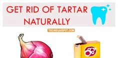 HOW TO GET RID OF TARTAR NATURALLY
