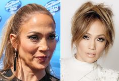 what happened to j lo face - Google Search