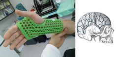 WASP Teams With Rizzoli Institute to Make 3D Printed Conductive Casts & Cranial Implants http://3dprint.com/65239/printed-cast-crainial-implant/