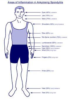 Ankylosing Spondylitis....I am d. All of the above