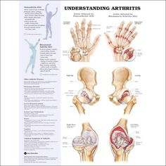 Natural Anti-inflammatory Remedies for Arthritis is a continuation from the hub Anti-Inflammatory Herbs for Arthritis that revealed a list of herbs that can assist with the pain and swelling of arthritis. There were numerous comments on the first...