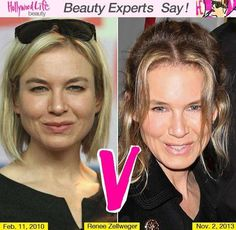 Plastic Surgeries Gone Wrong   List of Celebs Who Look Worse After Cosmetic Surgery~Renee Zellweger
