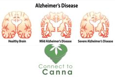 The major #cannabinoids found in #Marijuana, tetrahydrocannabinol (THC) and cannabidiol (CBD), reduce the build-up of plaques and tangles, and therefore show viable potential as treatment options for Alzheimer's disease. Visit for more details: http://www.connect2canna.com/patients/