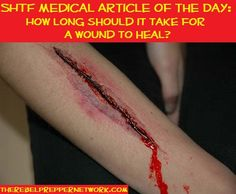 SHTF Medical Article of the Day: How long should it take for a wound to heal?
