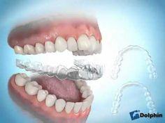 que comer para mejorar la gota dieta para bajar acido urico y trigliceridos que afecta el acido urico en el organismo