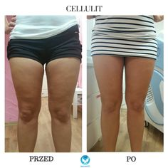 Carboxytherapy treatment for cellulite After and before. Co2 treatment. Beauty Clinic. Effects after using Medika device. www.maxmedik.pl