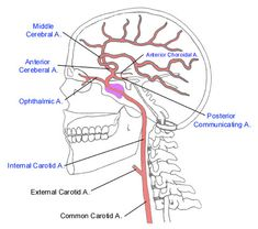 Lateral cerebral angiogram from KU Radiographic Anatomy ...