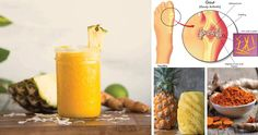 Treat Gout and Arthritis with this Inflammation-Busting Pineapple Turmeric Drink   Live Love Fruit