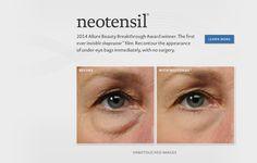 • Living Proof Neotensil - offers a temporary fix for under-eye bags. Basically, you prep your skin and then brush on a liquid substance that dries into a film which firms up any under-eye baggage you're carrying around. It lasts for a day, is completely undetectable, and is easily removed. You have to purchase it at a dermatologist's office and get trained there on how to apply it the first time, but it provides miraculous, albeit temporary, results.