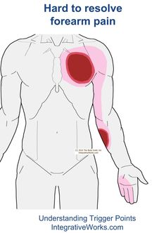 Understanding Trigger Points - Hard to resolve forearm pain