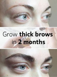 how to grow thick eyebrows:use this easy home remedies to grow your eyebrows faster..... #thick #eyebrows