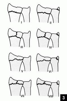 frykman-distal-radius-fracture-classification