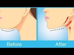 The Best Exercises to Get Rid of Double Chin Fat & Neck Fat - YouTube