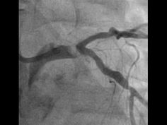CABG or PCI for this left main NSTEMI?