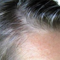 Remedies For Balding Science Confirms an Age-Old Remedy for Gray Hair and Baldness Premature Grey Hair, Shampoo For Gray Hair, Grace Beauty, Hair Remedies For Growth, Going Gray, Stay Young, Beauty Recipe, Grow Hair, Hair Loss