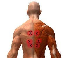 Myofascial Pain Syndrome (Chronic Soft Tissue Pain)