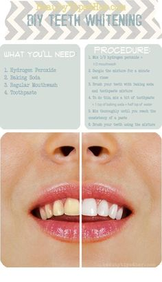 Haven't tried this yet. Make your teeth white without harsh chemicals