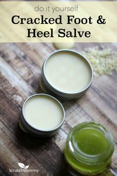A super simple, crazy effective DIY Cracked Foot and Heel Salve Recipe. This stuff smells amazing and is so great for my feet!