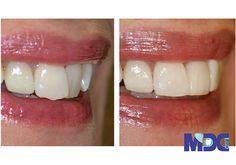 روکش کامپوزیت دندان چیزی نیست جز یک لایه نازک و همرنگ دندان که از مواد رزینی ساخته شده است و بر سطح خارجی دندان چسبانده می شوند.این کار برای فراهم کردن محافظت از دندان آسیب دیده و زیبایی دندان به طور همزمان استفاده می شود اما کامپوزیت دندان کج نیز یکی از دلایل استفاده از ونیر کامپوزیت ها می باشد. Composite Bonding, Crooked Teeth
