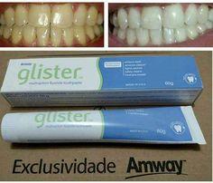 ***Direto dos EUA*** Creme dental Glister R$ 15,00 de 60gr e R$ 30,00 de 200gr. Amway garante seus dentes brancos em 30 dias!