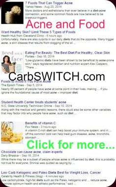 ♥ Acne treatment acne remedies acne cure targeted low carb or no carb Recipes, Infographics & DAILY nutritional science news updates help you or a loved one #carbswitch carbswitch.com Please Repin ►♥◄ Health News: Diets Food Updated DAILY - Diets for Women: Best Diet Plan Best Diet Foods