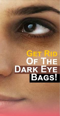 Many women have dark circles around the eyes and cover them with a colonel every morning. However, you can still reduce the appearance of dark circles through this workaround that you will definitely like. Hooded Eye Makeup, Eye Makeup Tips, Smokey Eye Makeup, Makeup Ideas, Makeup Tutorials, Skin Anatomy, Skin Bumps, Alcohol Free Toner, How To Apply Eyeliner