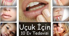 Vücudumuzun çeşitli yerlerinde görülen uçuğun kaynağı bir virüstür. Genellikle ağız, dudak, yüz de görülür. Çok nadir de olsa genital bölged...