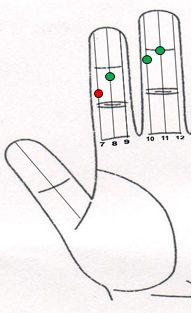 Hinchazón en las extremidades inferiores tratamiento a través Sujok 1 La terapia del color  Línea no. 10 - Punto no. 4 - Verde Línea no. 11 - Punto no. 3 - Verde Línea no. 7 - letra no. 5 - Rojo Línea no. 8 - letra no. 4 - Verde