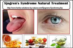 Sjogren's Syndrome Natural Treatment at Home
