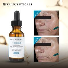 Wrinkles? Laxity? We've got you covered with C E Ferulic. Results in over 24 clinical studies show that SkinCeuticals antioxidants deliver powerful anti-aging skin benefits. #SkinCeuticals #Skincare #YuvaMedicalSpa