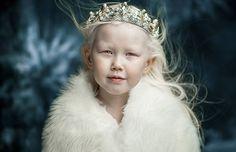 Dit 8-jarige meisje met albinisme verrast de modewereld met haar prachtige verschijning