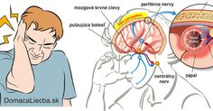 Almost everyone has suffered from migraine at least once. Migraine is a headache which does not respond to painkillers. Migraine Cause, Migraine Attack, Migraine Pain, Migraine Diet, Tension Headache, Headache Relief, Instant Migraine Relief, Bad Headache, Peptic Ulcer
