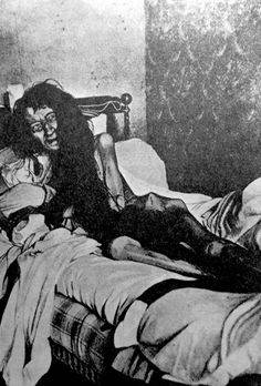 Mademoiselle Blanche Monnier held captive in a room for 25 years by her mother and brother. All because she would not refute the man she loved. Picture taken at a hospital in France after her rescue.