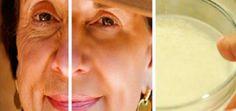Vrásky a stáří? Všichni víme, že tyto dvě věci spolu souvisí. Mnoho lidí po celém světě, zejména žen se obávají o pokožku.