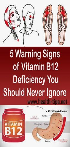 5 Warning Signs of Vitamin Deficiency You Should Never Ignore weight loss weight loss program weight loss plan quick weight loss diet easy weight loss tips best weight loss workouts weight loss diet plan weight loss cleanse paleo recipes for weight loss Natural Excema Remedies, Natural Hemroid Remedies, Natural Remedies For Migraines, Eczema Remedies, Natural Health Remedies, Herbal Remedies, Natural Cures, Natural Oils, Natural Hair