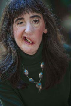 Francis mcgregor facial defects