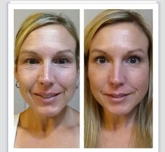 Before & after photos - used Redefine for 8 weeks. Amazing results and affordable products. #skincare #rodanandfields #redefine   https://lisadion.myrandf.biz//