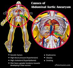Abdominal Aortic Aneurysm Treatment Causes Symptoms Signs Tests